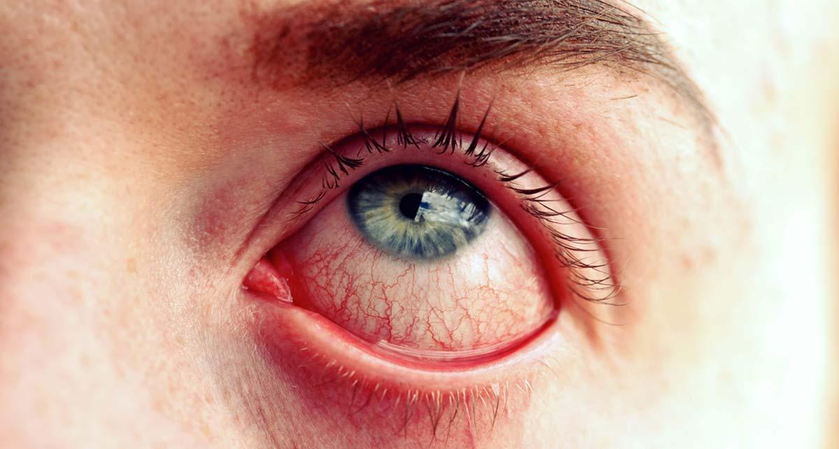 Воспаление конъюнктивы и называется конъюнктивитом.