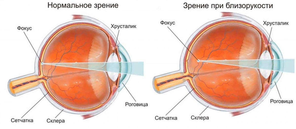 Близорукость — это один из самых распространенных дефектов зрения
