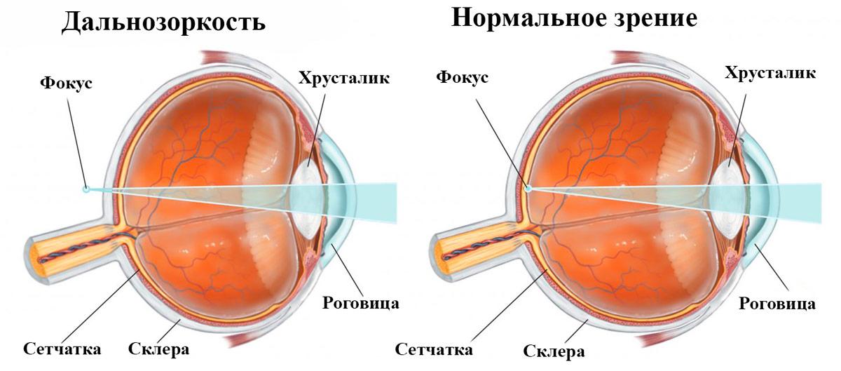 Дальнозоркость — также распространенная глазная аномалия