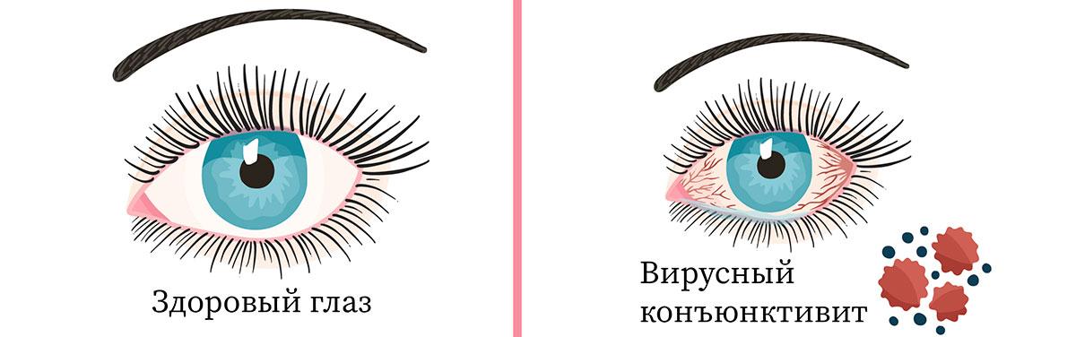 Вирусный конъюнктивит — это патология слизистой оболочки глаза