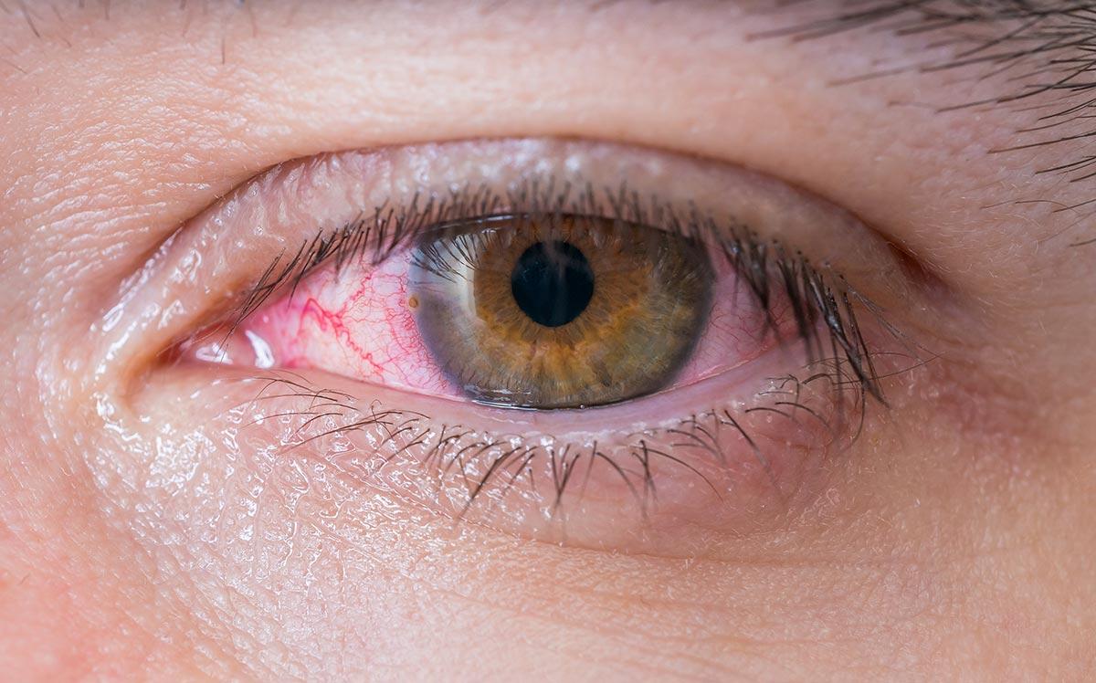 воспаление конъюнктивы — слизистой оболочки глаза