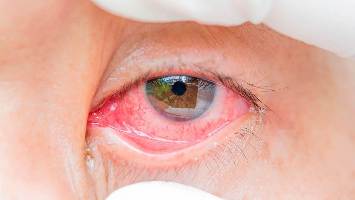 Конъюнктивит — одно из распространенных офтальмологических заболеваний