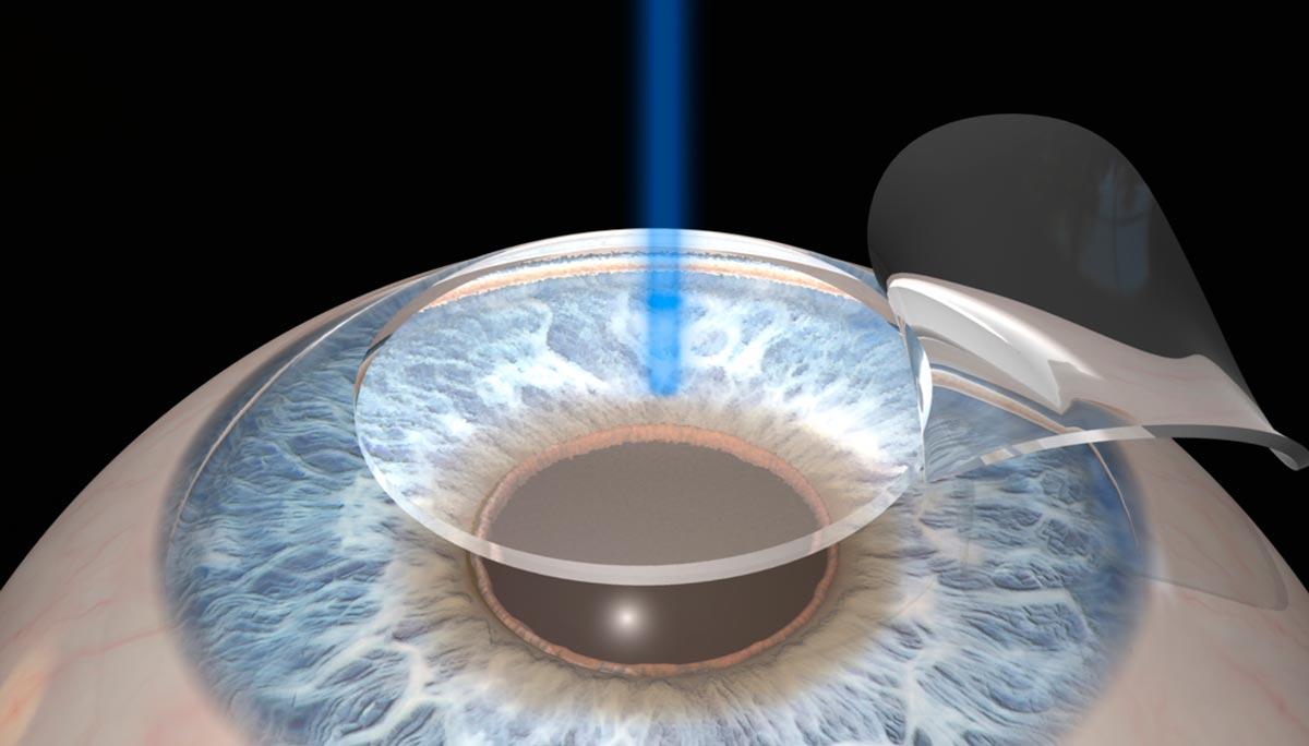 Методов проведения лазерной коррекции разработано много