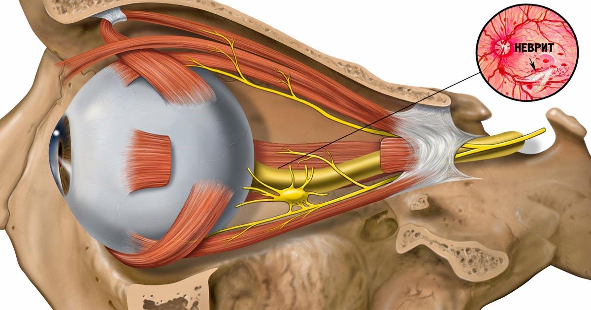 Неврит глаза — это воспаление зрительного нерва