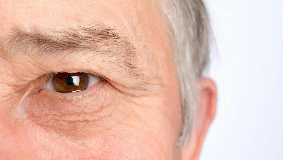 Очаг воспаления при ретробульбарном неврите находится на глазнице