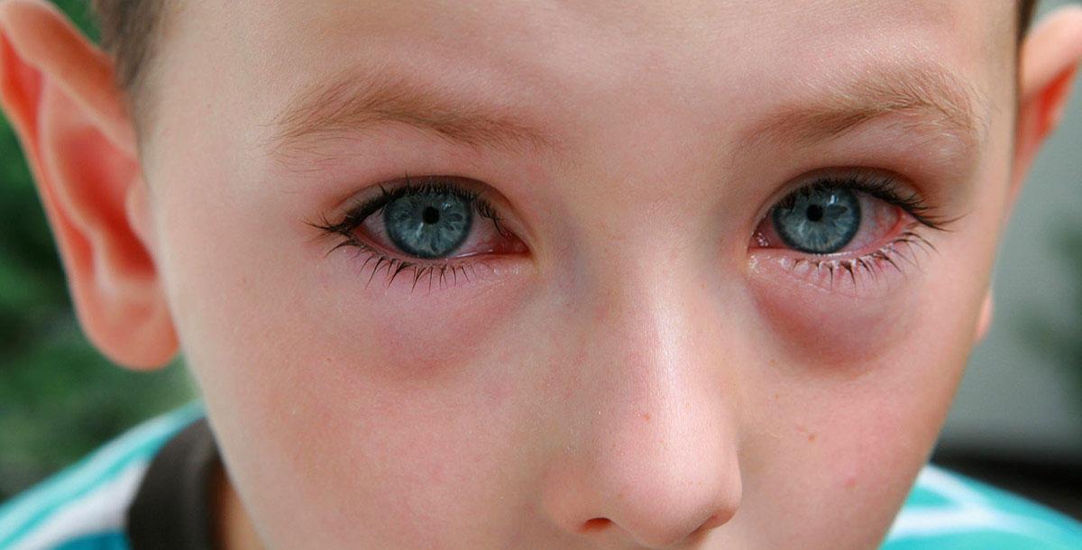 В отдельную группу стоит вынести заболевания офтальмологического характера