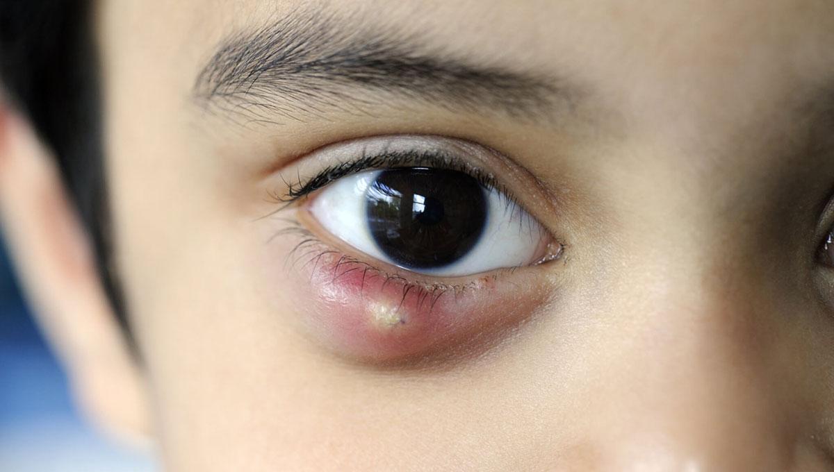 Ячмень — ещё одно заболевание, при котором веко начинает чесаться и отекать.