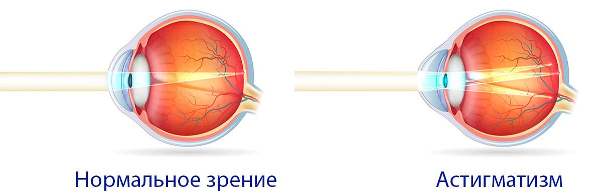 Астигматизм - одно из самых распространенных офтальмологических заболеваний