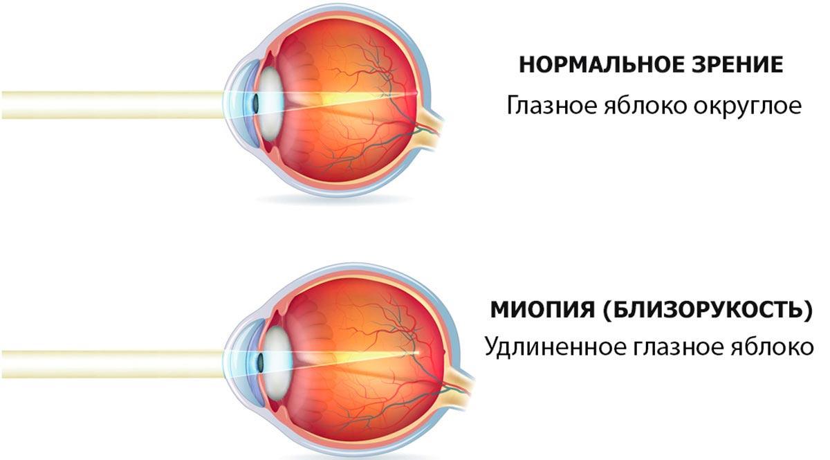 длина глаза больше, чем того требует преломляющая сила оптической системы