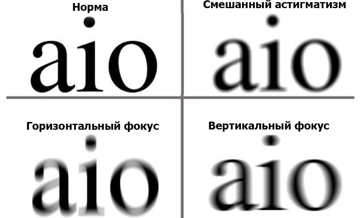 То, какой астигматизм у Вас, может определить только окулист
