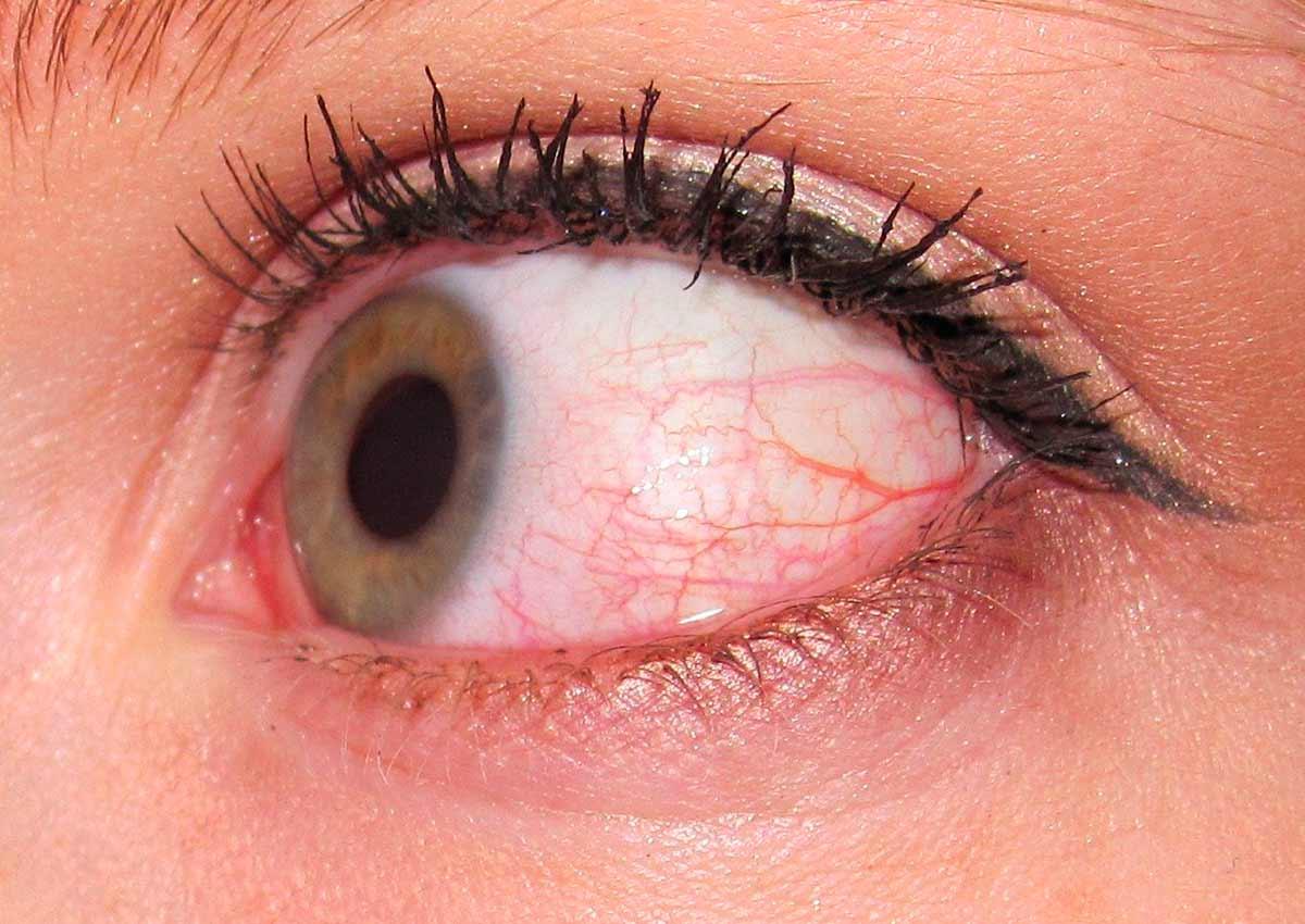 симптомы отека глазго века