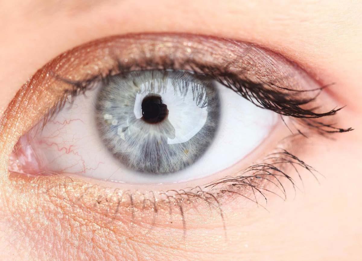 Отек слизистой глаз и век thumbnail