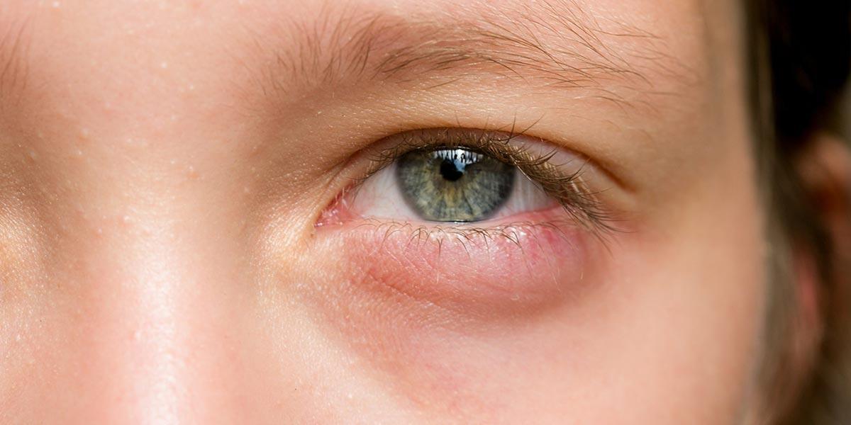 Отек века одного глаза — это исключительно косметический дефект