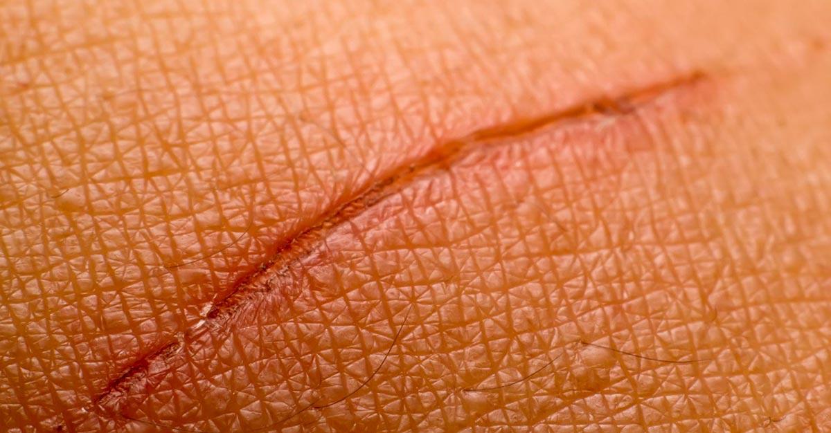 Также вирус проникает в организм через ссадины и царапины на коже.