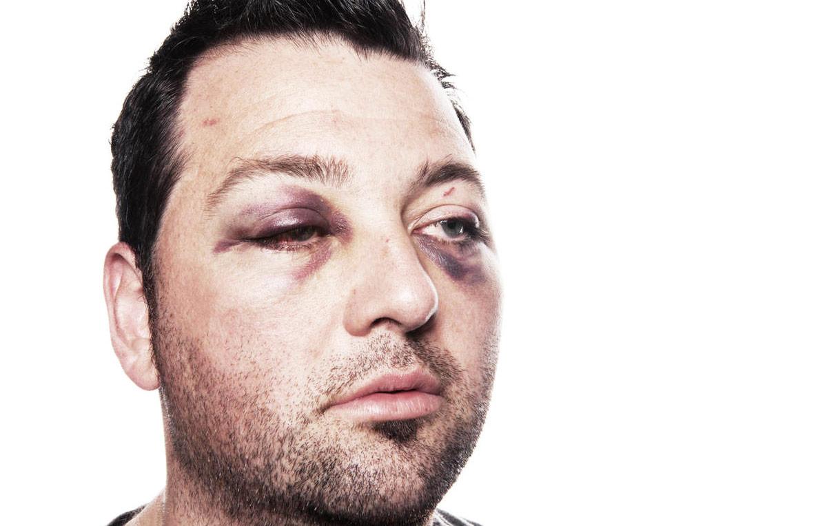 Тупые травмы глаз являются одними из самых распространенных.