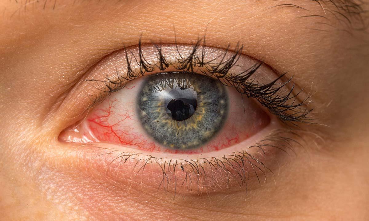 Конъюнктивит — это одна из патологий, которую чаще всего диагностируют окулисты