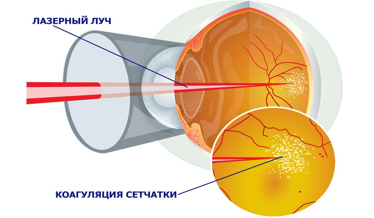 лазерная коагуляция сетчатки