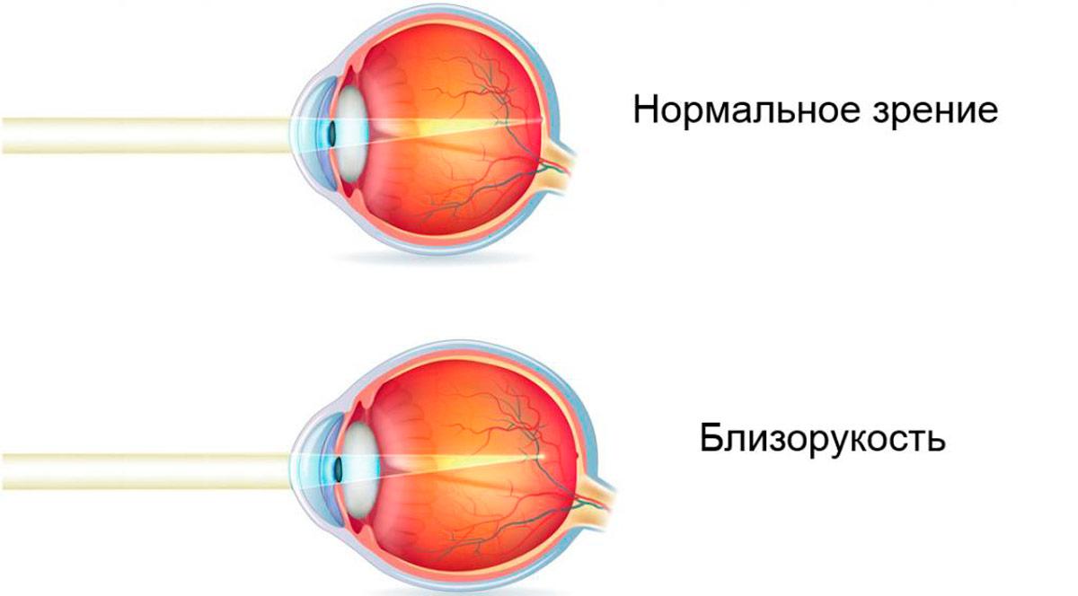 Плюсовые очки при близорукости у детей - энциклопедия Ochkov.net