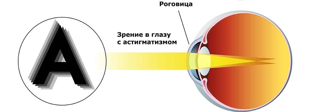 Астигматизм — это дефект фокусировки зрения в одной точке