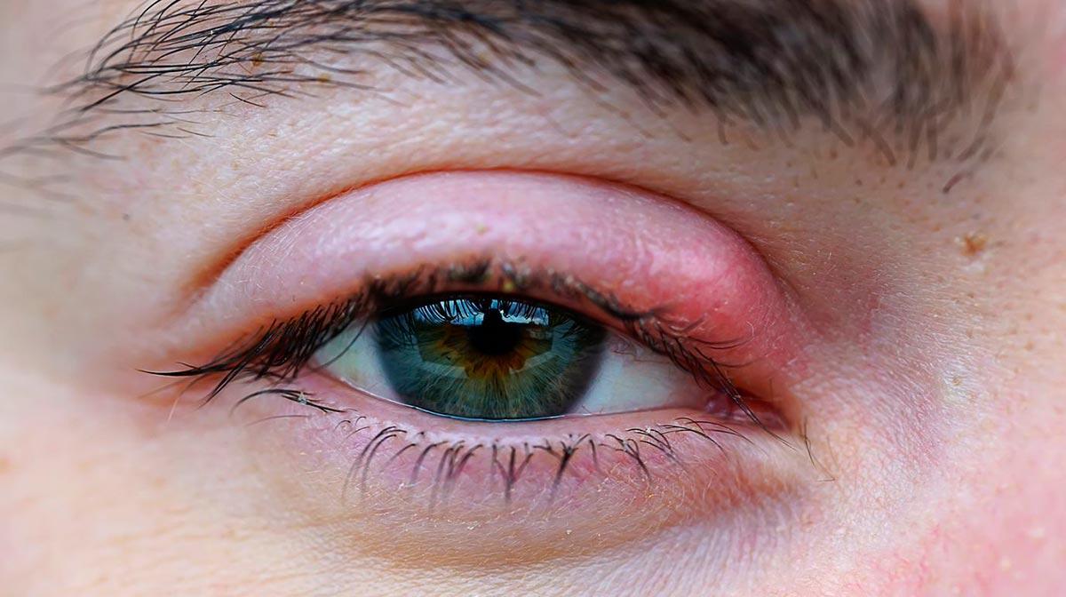 Веко опухло, чешется, краснеет — это распространенные симптомы гордеолума