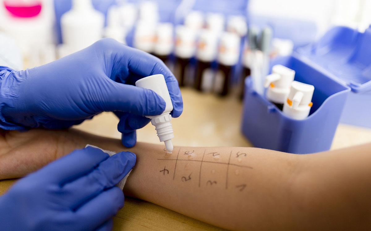 выяснить, в чем причина раздражения, и свести на нет контакт с аллергеном