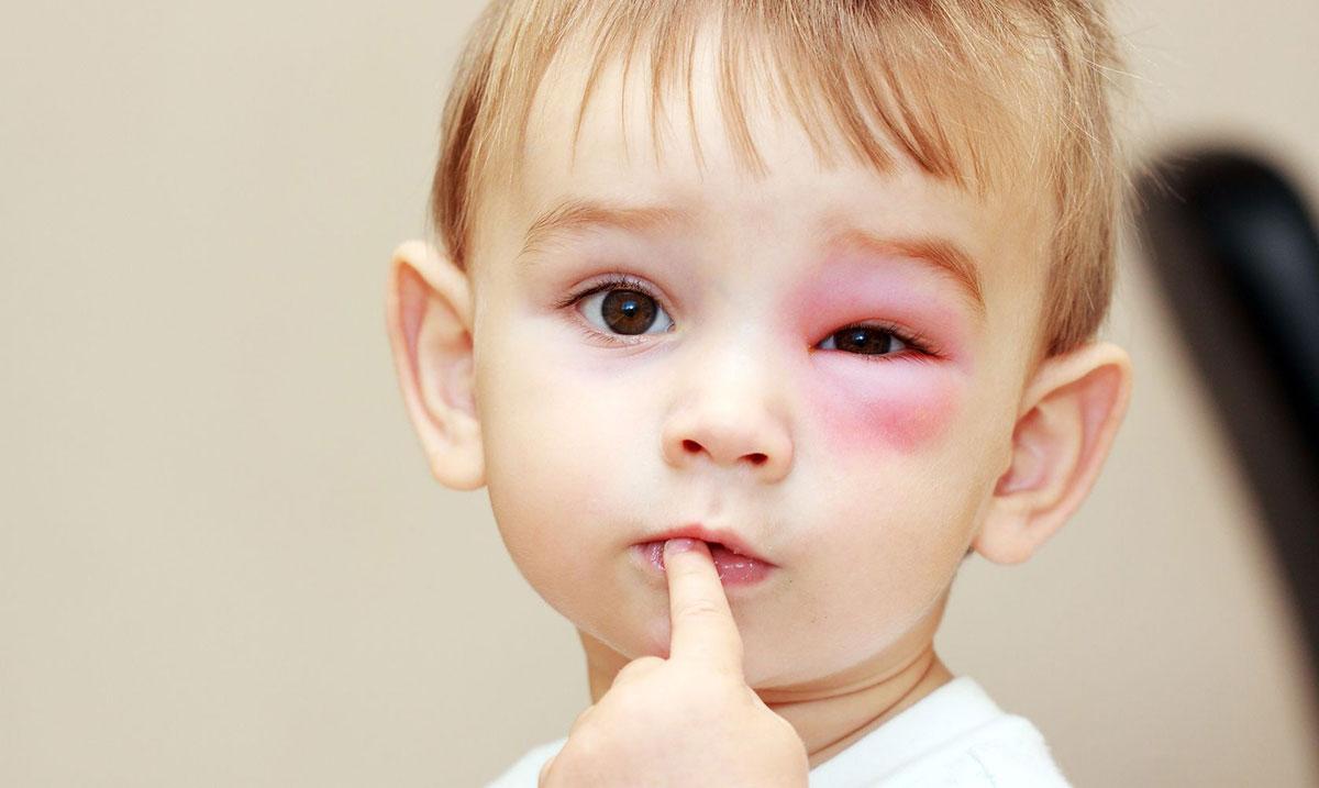 одна из самых распространенных причин — это аллергическая реакция