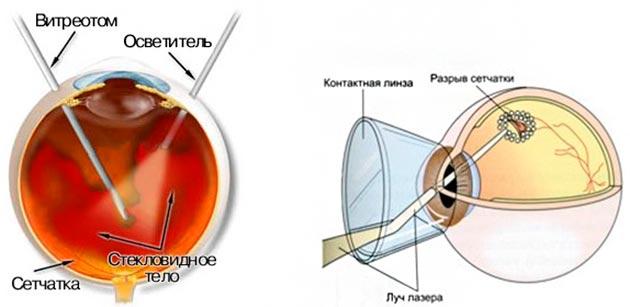 Коагуляция сетчатки при беременности отзывы