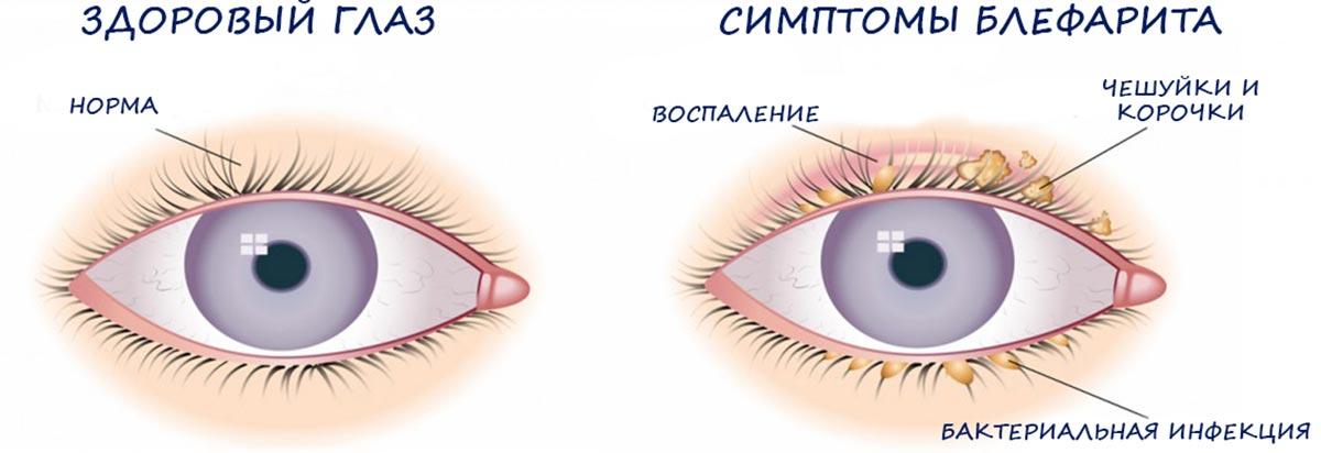 Себорейный блефарит — самый распространенный вид данного заболевания