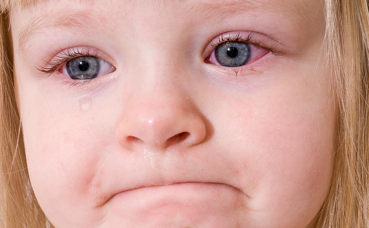 Чаще всего конъюнктивит бывает у детей