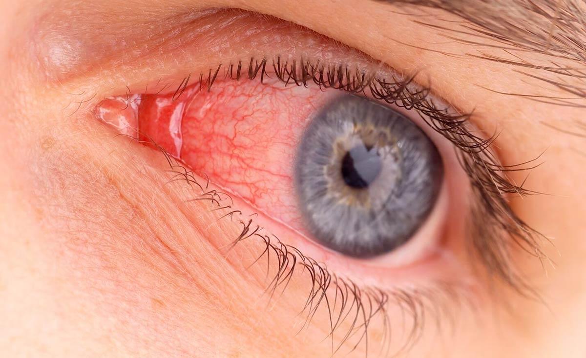 С воспалением глаз сталкиваются хоть раз в жизни более 70% людей