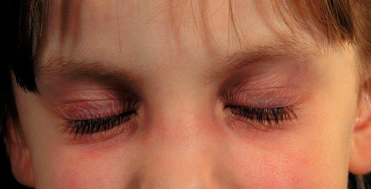 Дети постарше часто трут глаза руками