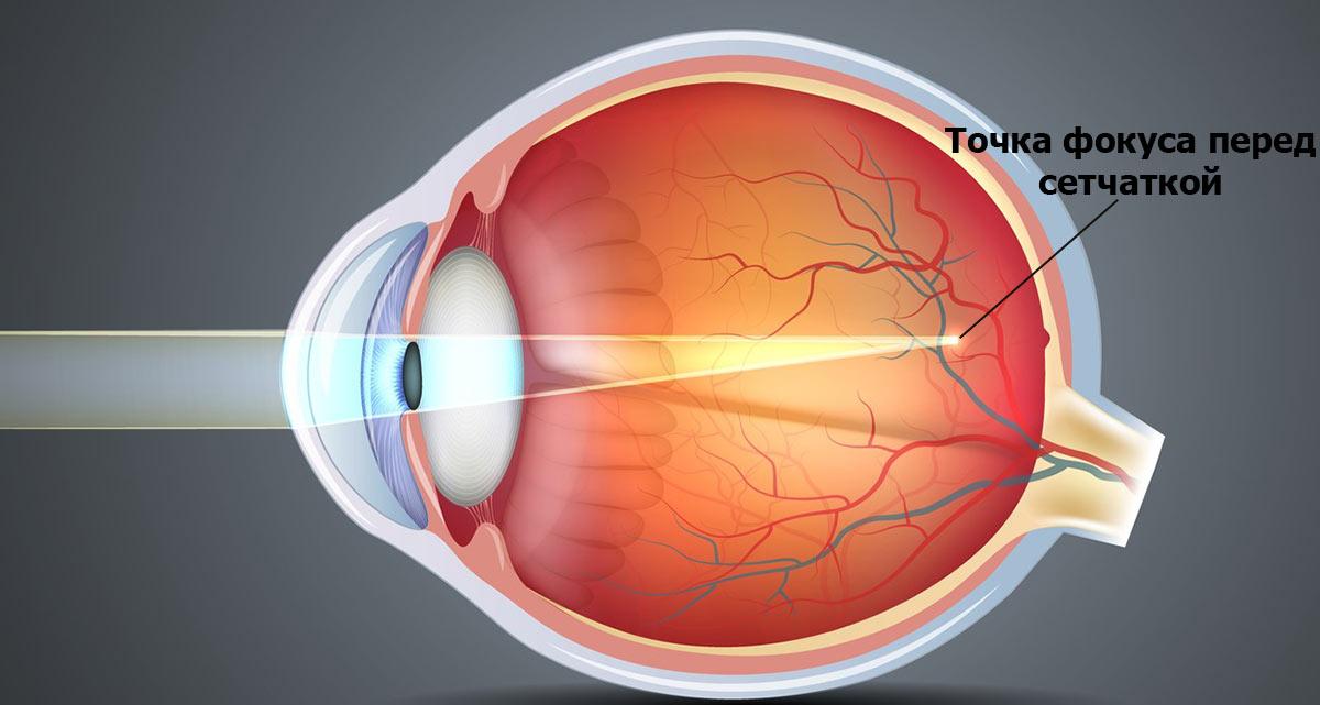 рефракционная миопия — вызвана чрезмерными преломляющими особенностями оптической системы глаза