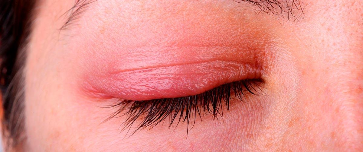 травма глаза может приводить к опуханию век