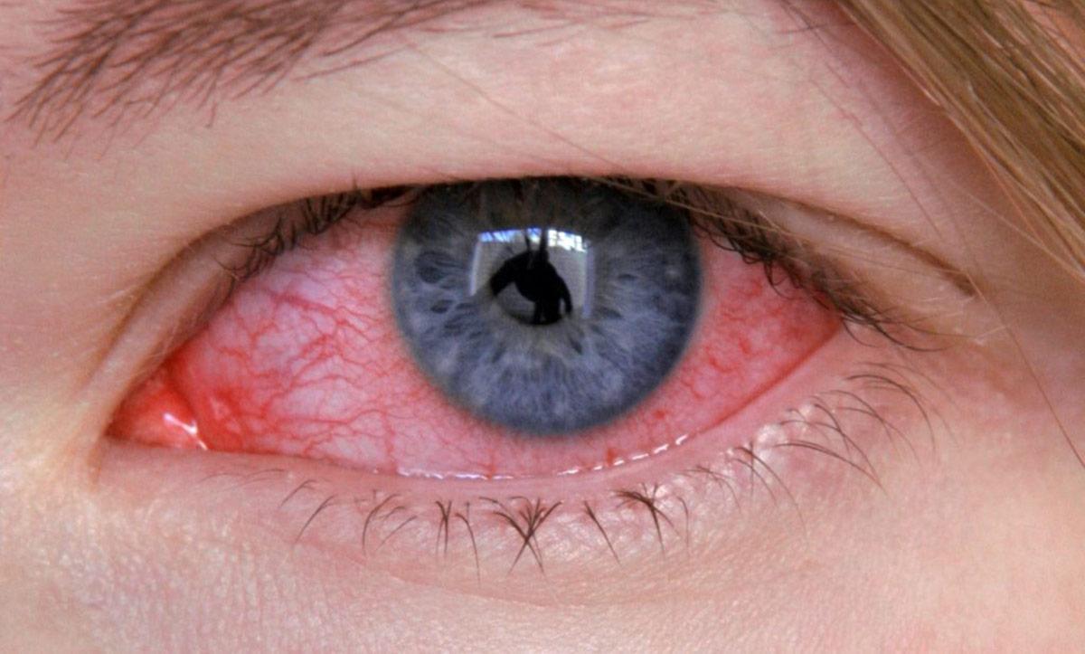 гиперемия и отек слизистой оболочки глаза, опухоль век, зуд