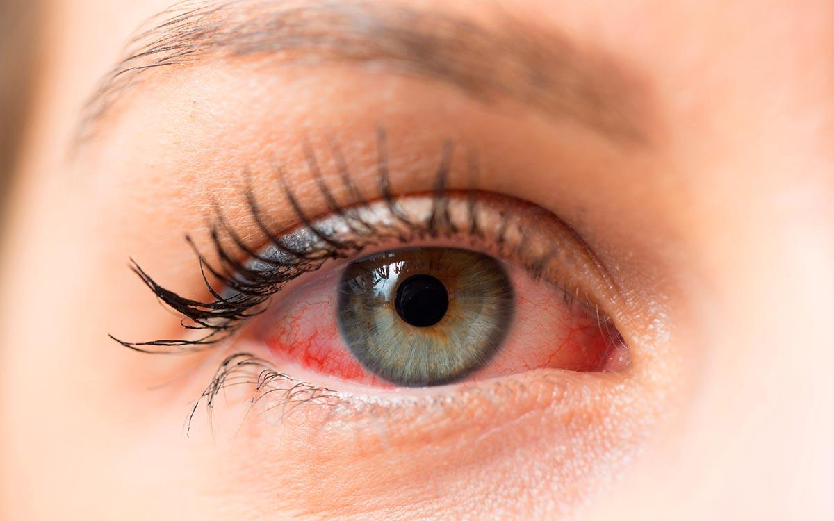 Водянистые отеки вокруг глаза thumbnail