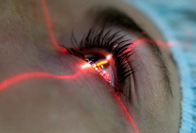 Повторная катаракта после замены хрусталика