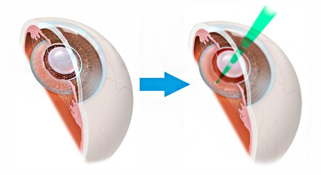 Вторичная катаракта после замены хрусталика. Лечение лазером ...