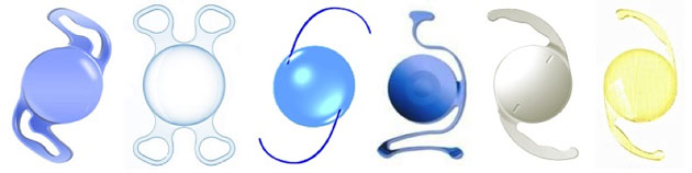 Близорукость после операции замены хрусталика