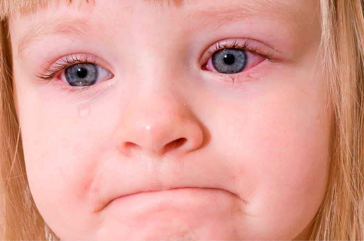 Бактериальный конъюнктивит у детей заразен или нет thumbnail