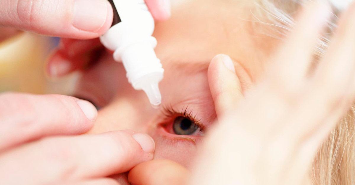 Применяются противогрибковые препараты, которые назначаются в виде капель