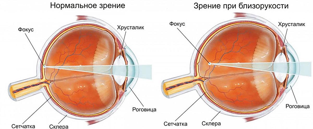 viziune cum se restabilește material suplimentar despre viziune