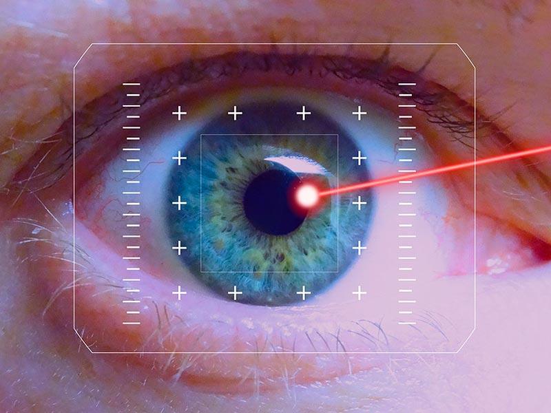 Укрепление сетчатки глаза лазером ограничения после операции