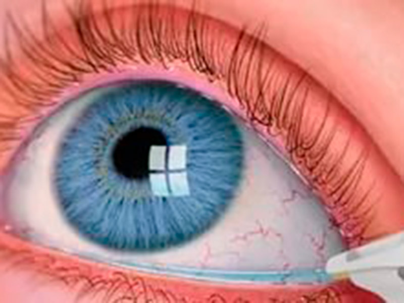 Глаукома глаза что это такое нужно ли оперировать