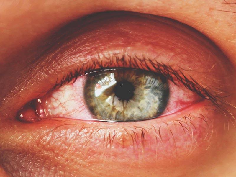 Грибок на глазах основные симптомы и способы лечения