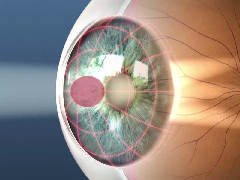 Стигматика глаза это